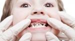 ทำฟันเด็ก ก่อนที่เด็กฟันจะผุ