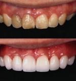 วีเนียร์ เคลือบฟันสวยเหมือนดารา